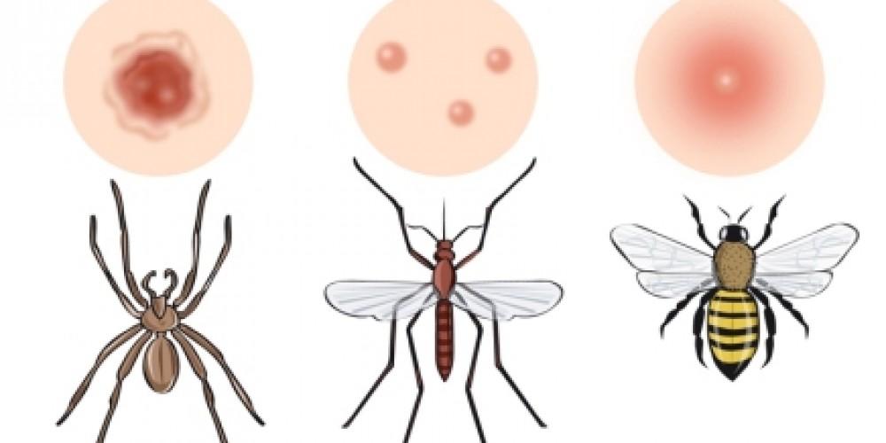 Qué insecto me ha picado